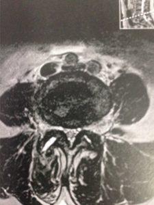 Vue axiale du spondylolisthésis L4L5 compliqué d'un rétrécissement du canal