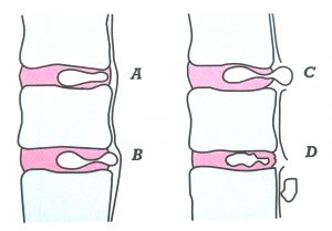 Différents types de hernie discale