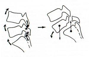Mécanisme du pince cigare provant la lyse isthmique